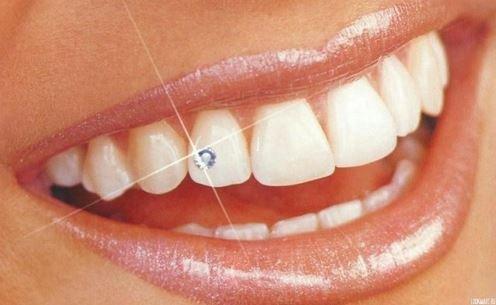 Украшение зубов: скайсы.