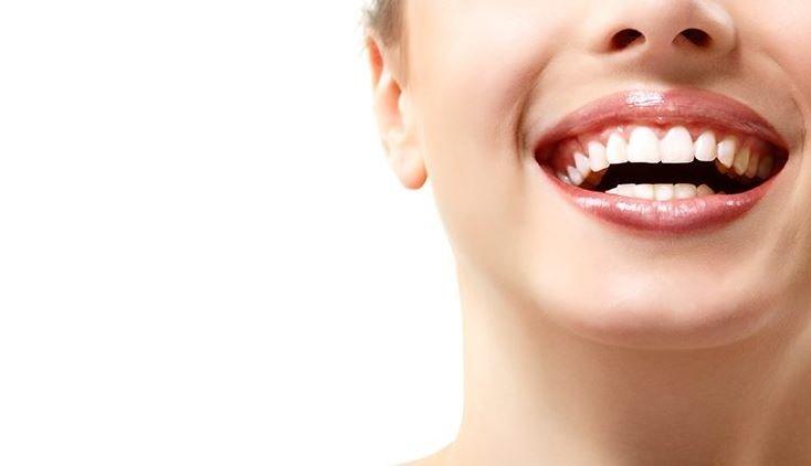Отбеливание зубов - подчеркните свою красоту