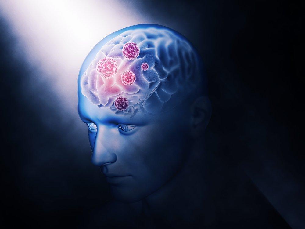 Коронавирус COVID-19 может бесконечно оставаться в головном мозге