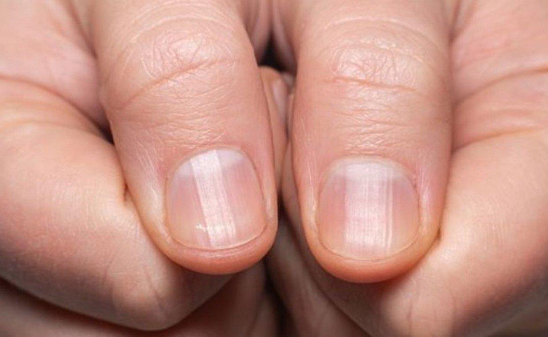 Обнаружены пять ногтевых признаков перенесения инфекции коронавируса COVID-19